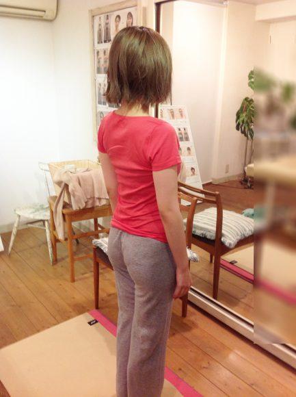岡田様 美容矯正 途中経過 体操